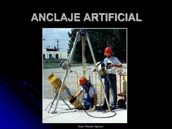 ANCLAJE ARTIFICIAL