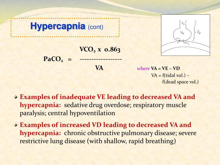 Hypercapnia