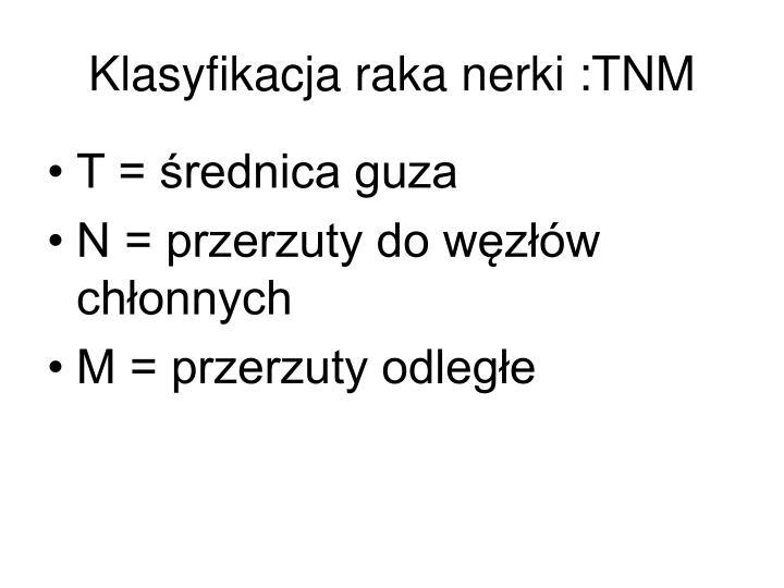 Klasyfikacja raka nerki :TNM