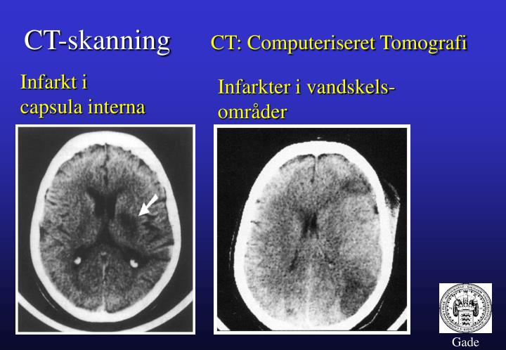 CT-skanning