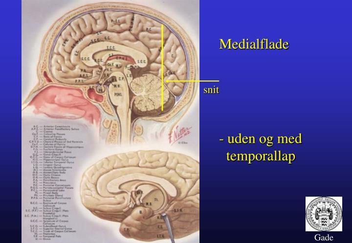 Medialflade
