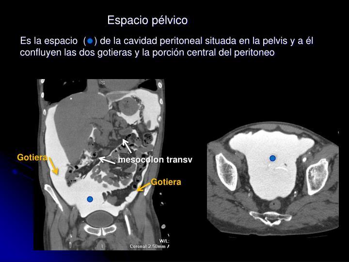 Es la espacio  (   ) de la cavidad peritoneal situada en la pelvis y a él confluyen las dos