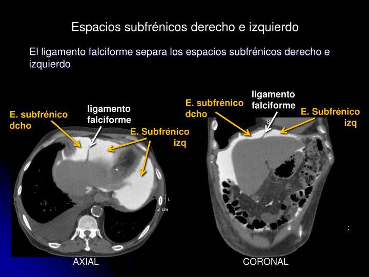 Espacios subfrénicos derecho e izquierdo