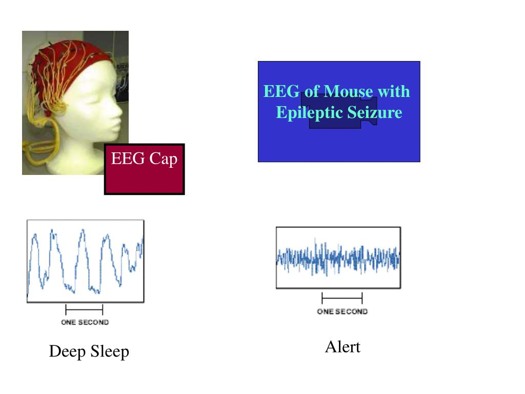 EEG of Mouse with