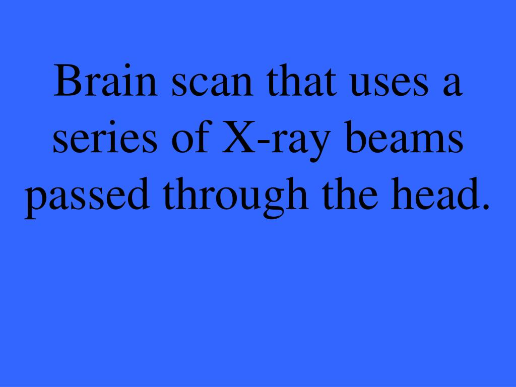 Brain scan that uses a series of X-ray beams passed through the head.