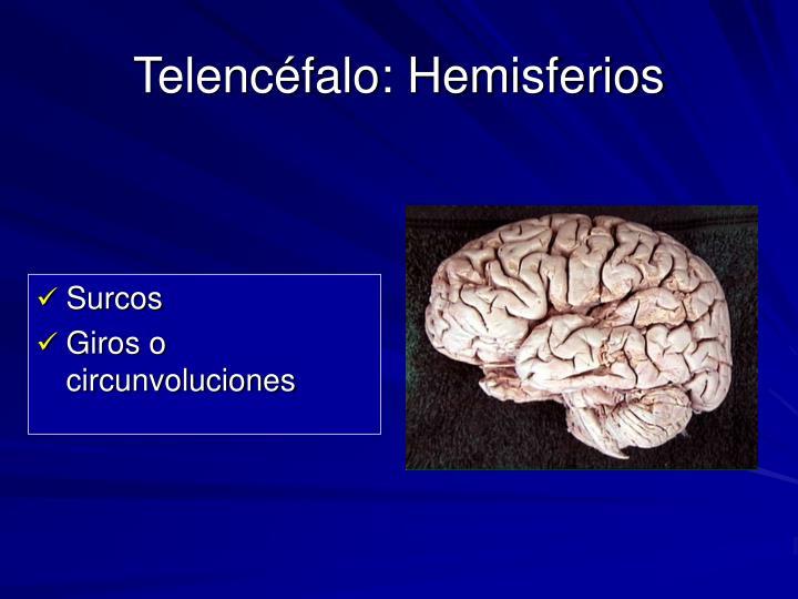 Telencéfalo: Hemisferios