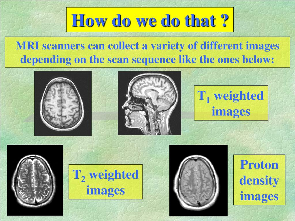 MRI scanners can collect a variety of different images depending on the scan sequence like the ones below: