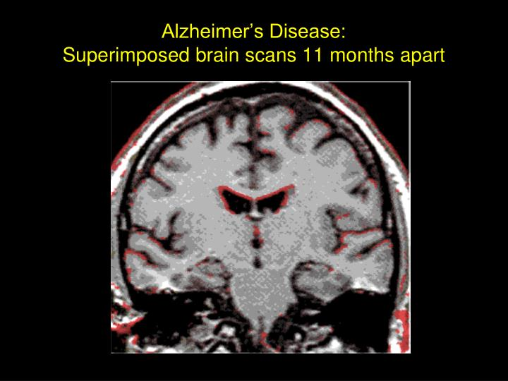 Alzheimer s disease superimposed brain scans 11 months apart