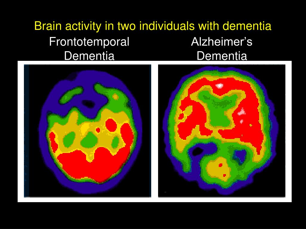 Brain activity in two individuals with dementia