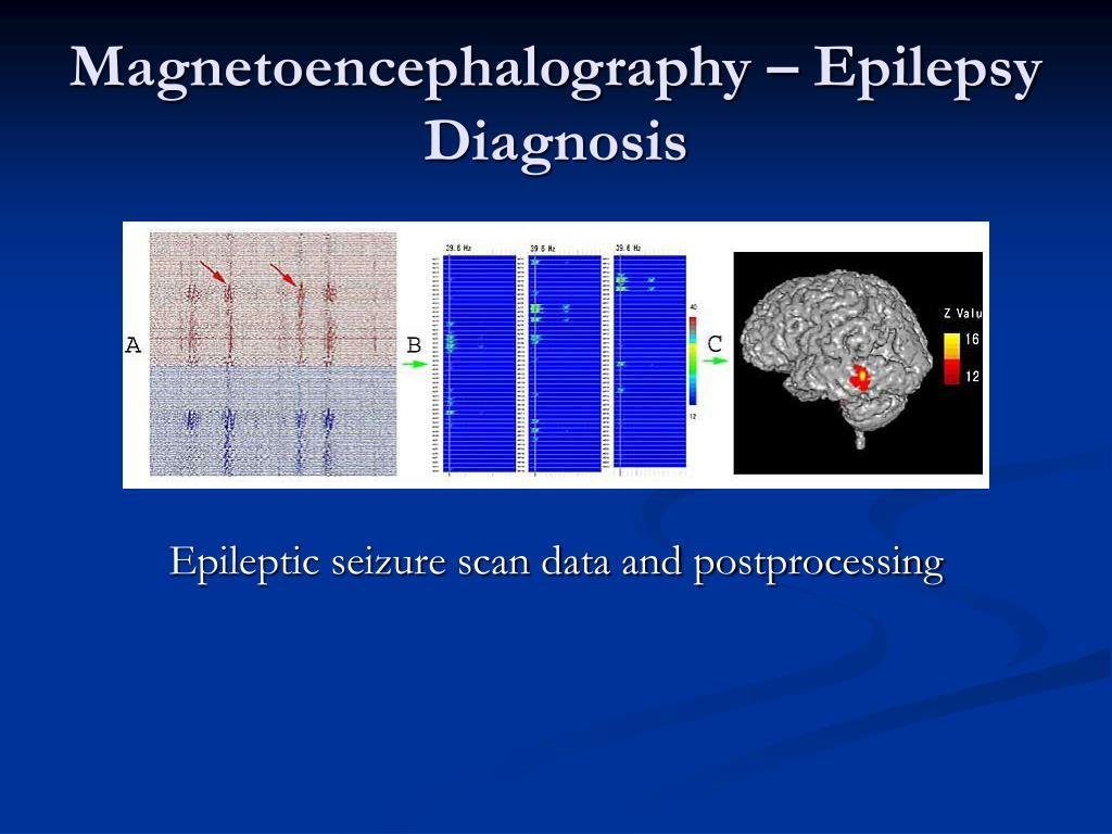 Magnetoencephalography – Epilepsy Diagnosis