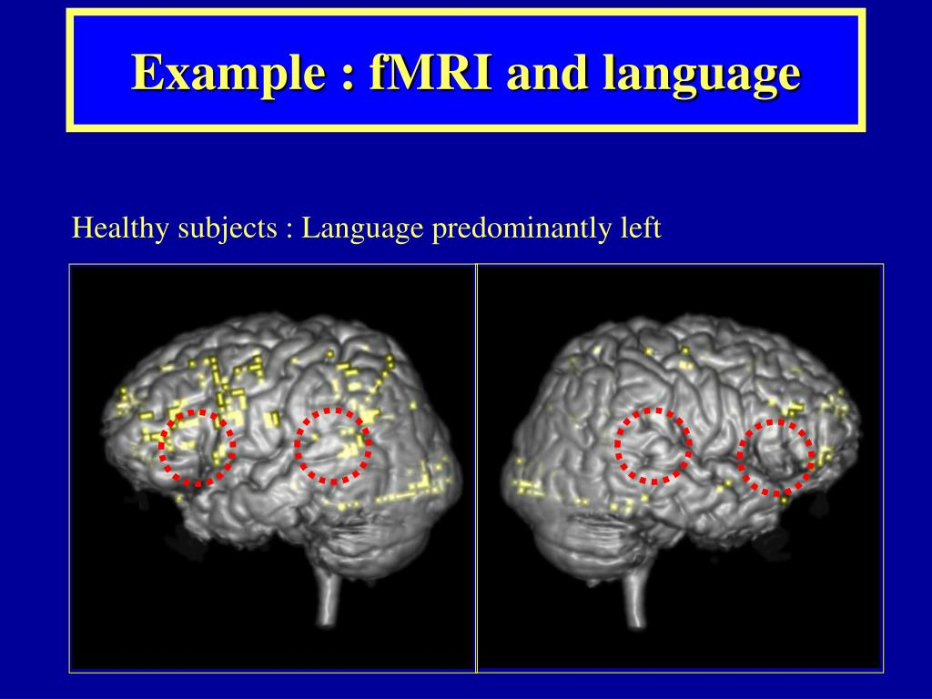 Example : fMRI and language