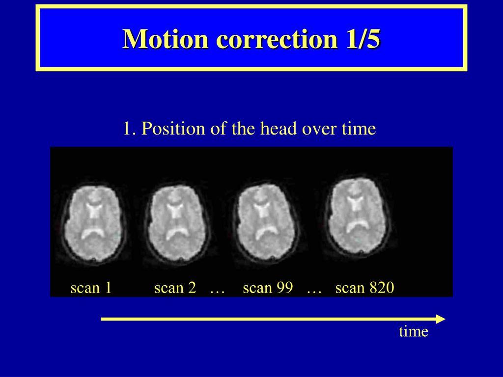 Motion correction 1/5