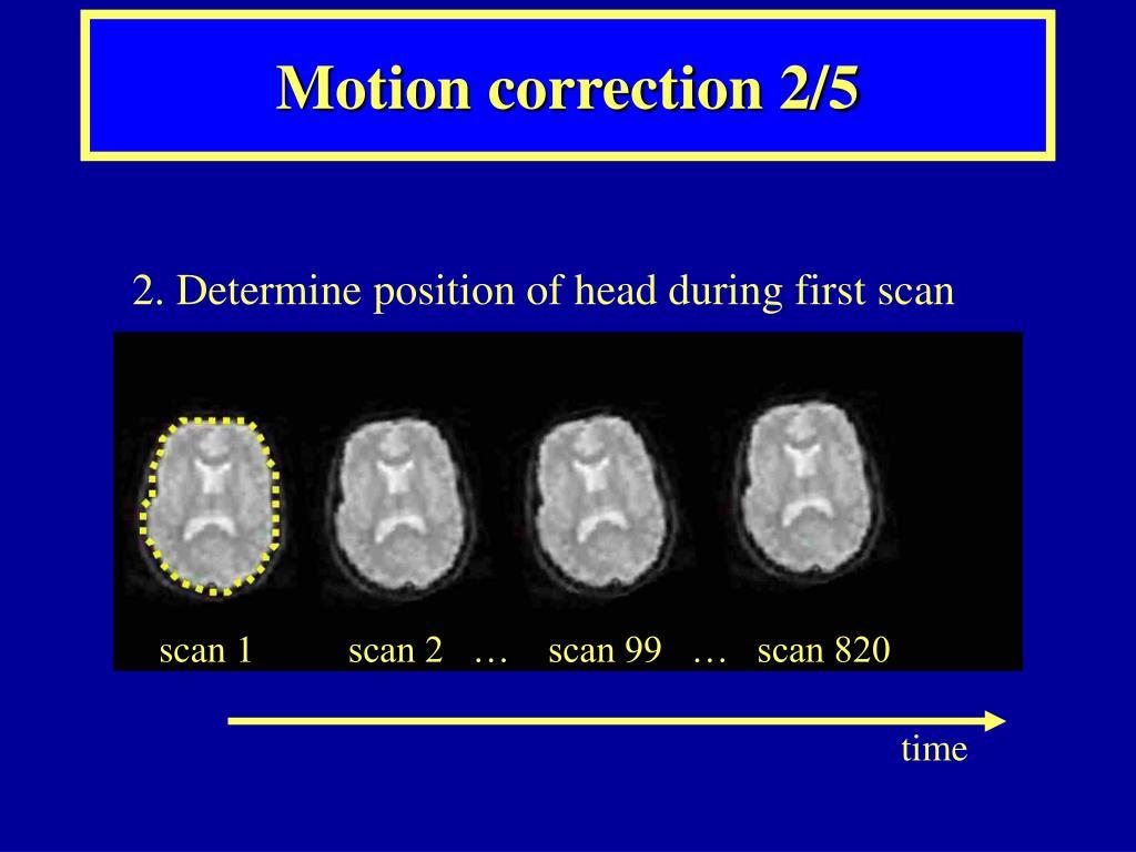 Motion correction 2/5