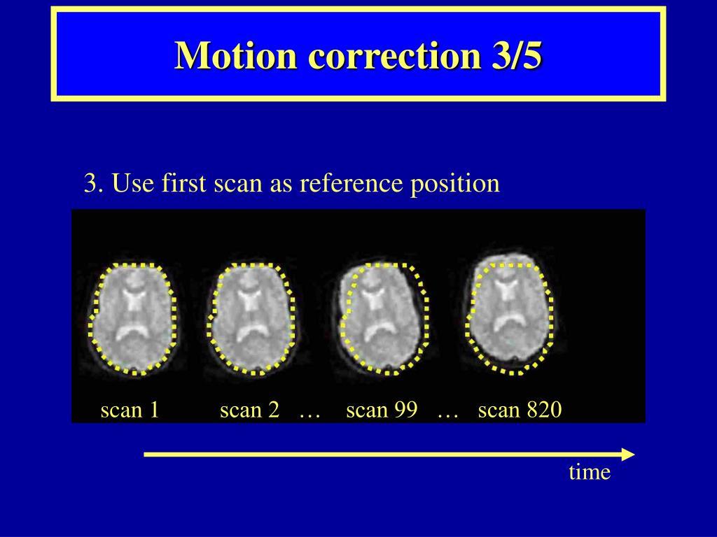 Motion correction 3/5