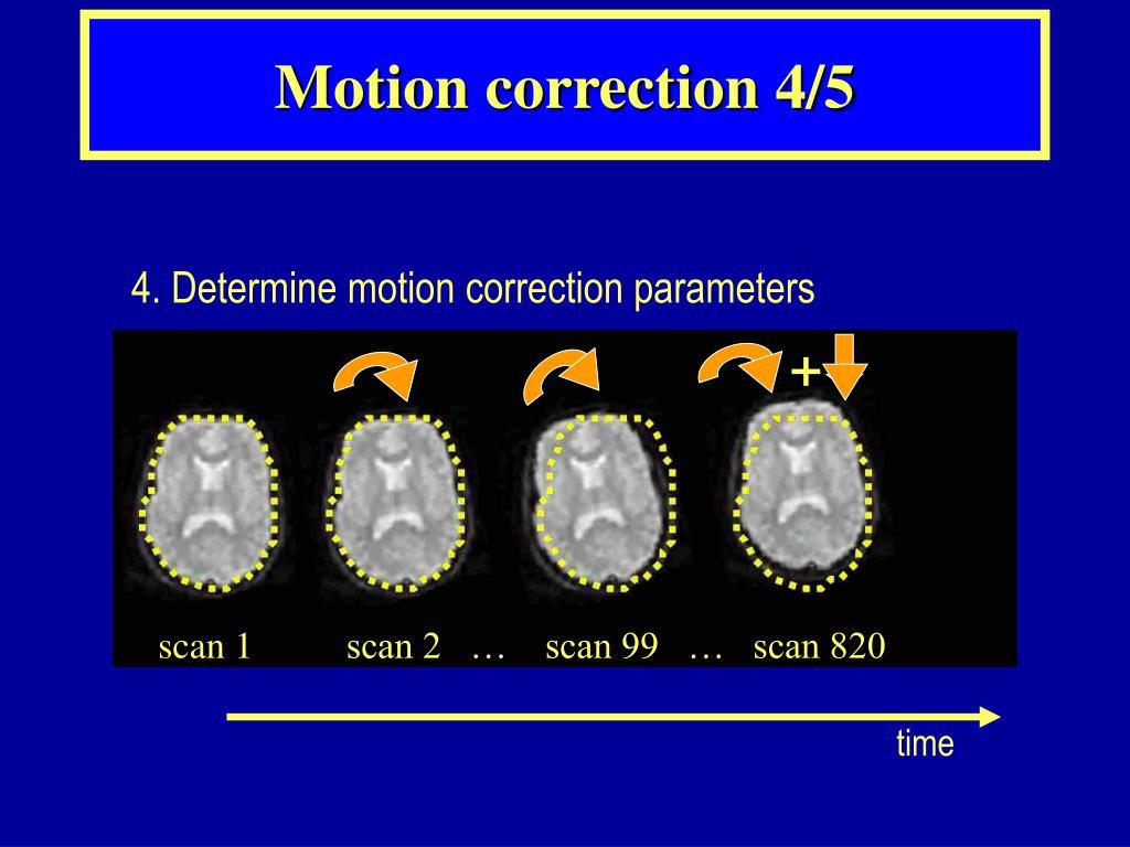 Motion correction 4/5