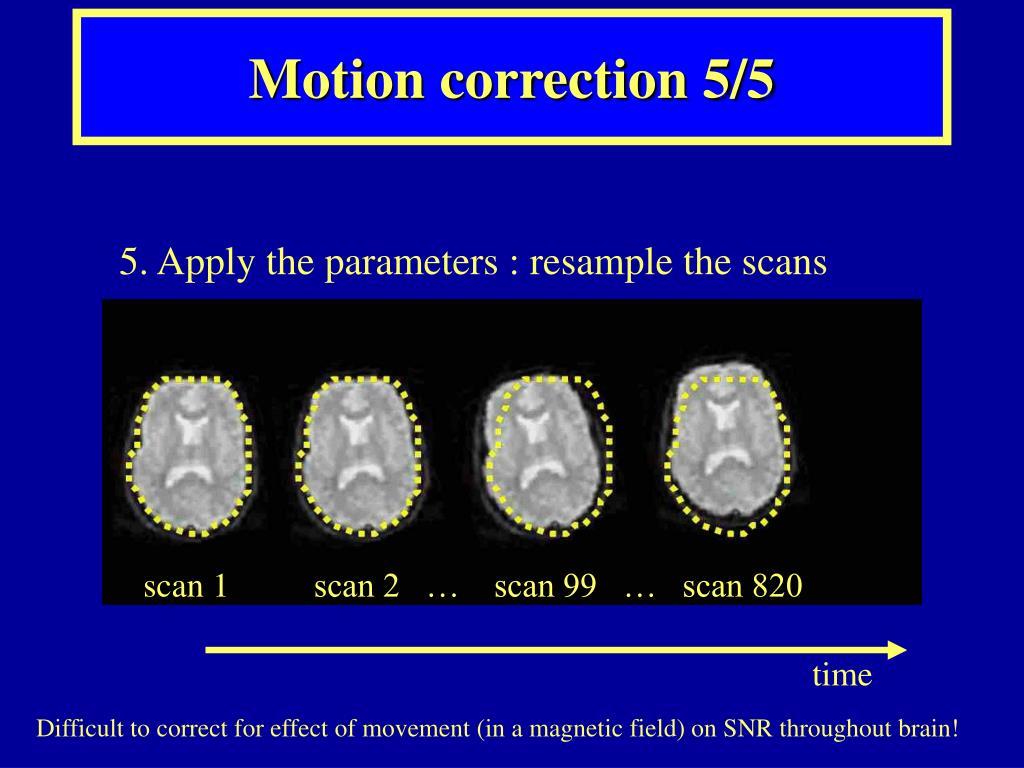 Motion correction 5/5