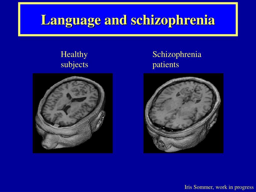Language and schizophrenia