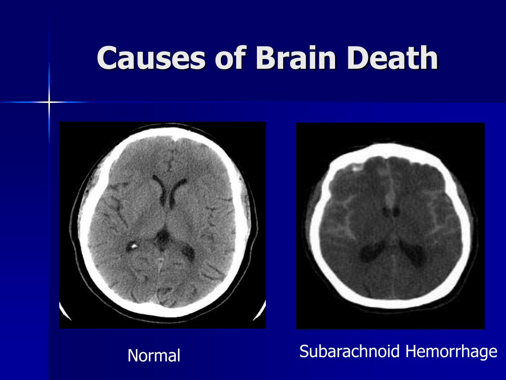 Causes of Brain Death