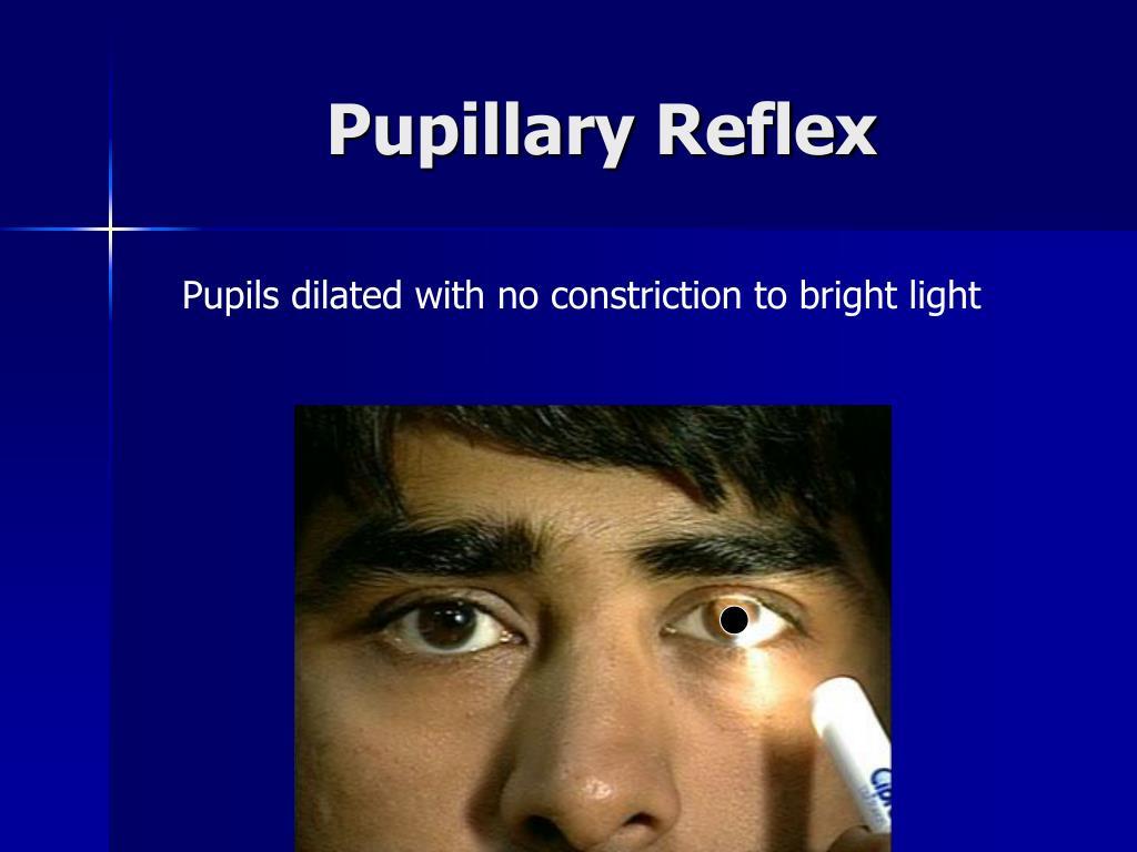 Pupillary Reflex