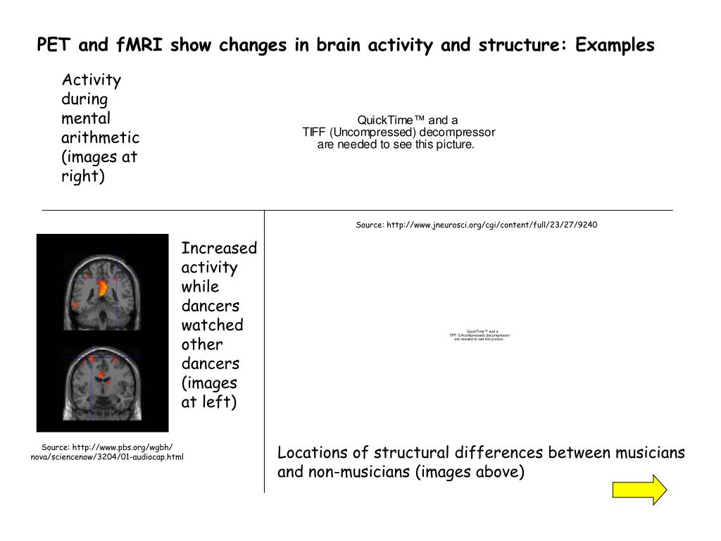 PET and fMRI show changes in brain activity and structure: Examples