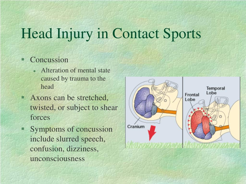 Head Injury in Contact Sports