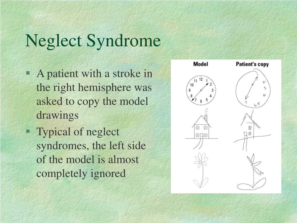 Neglect Syndrome