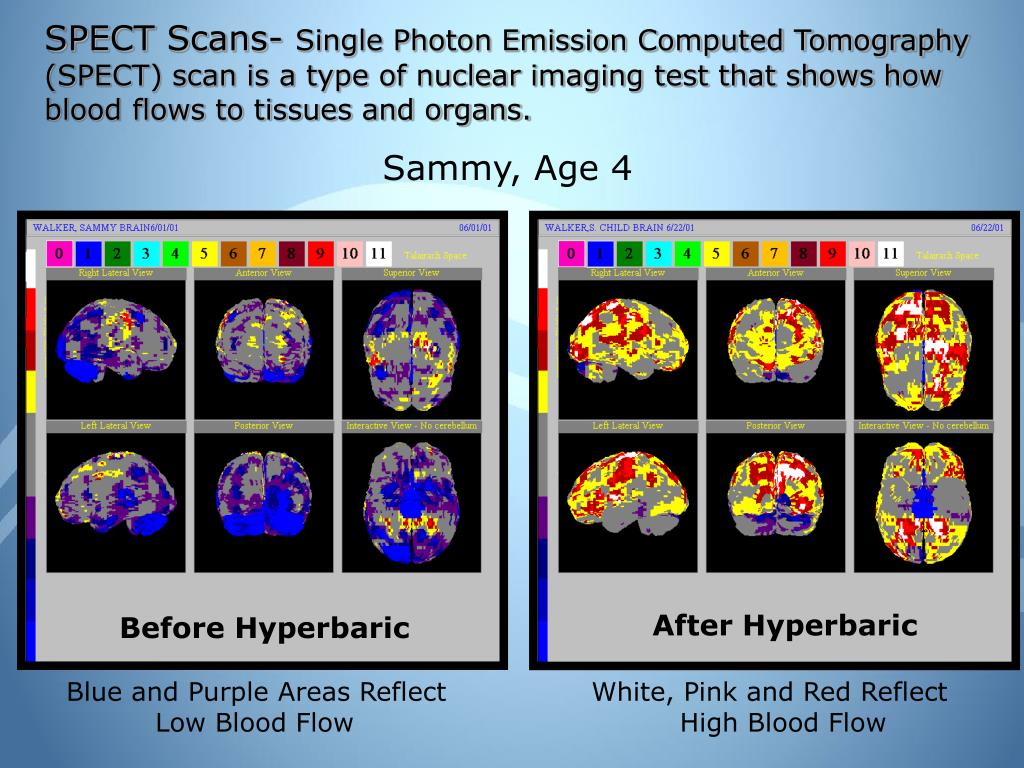 SPECT Scans-