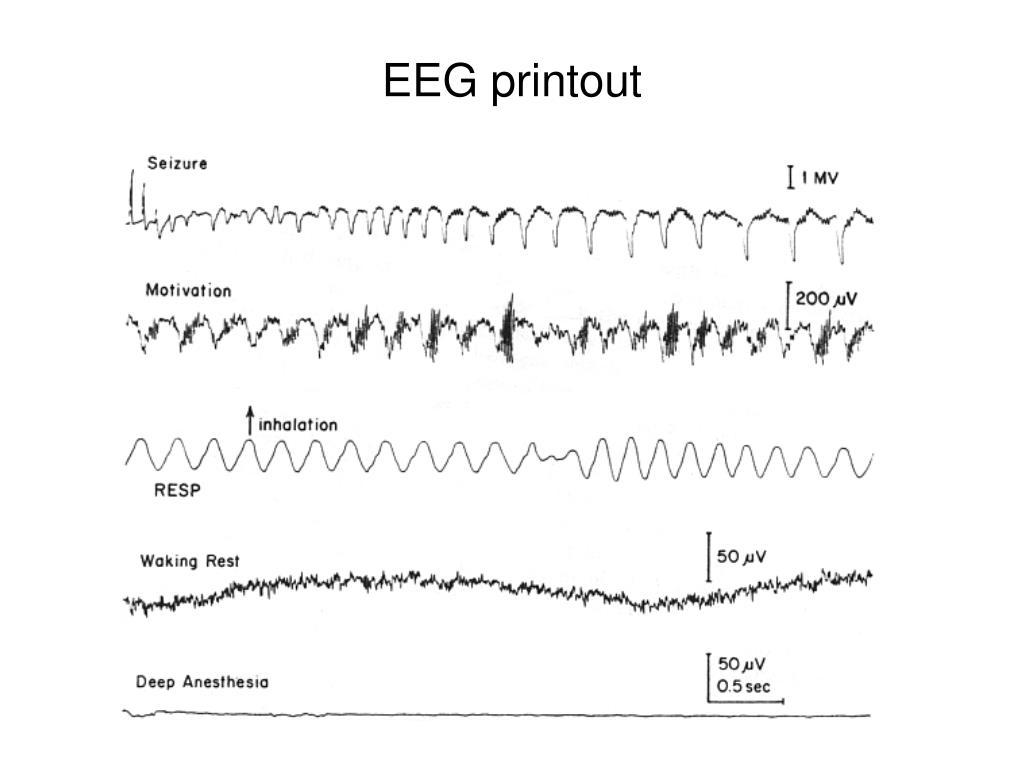 EEG printout