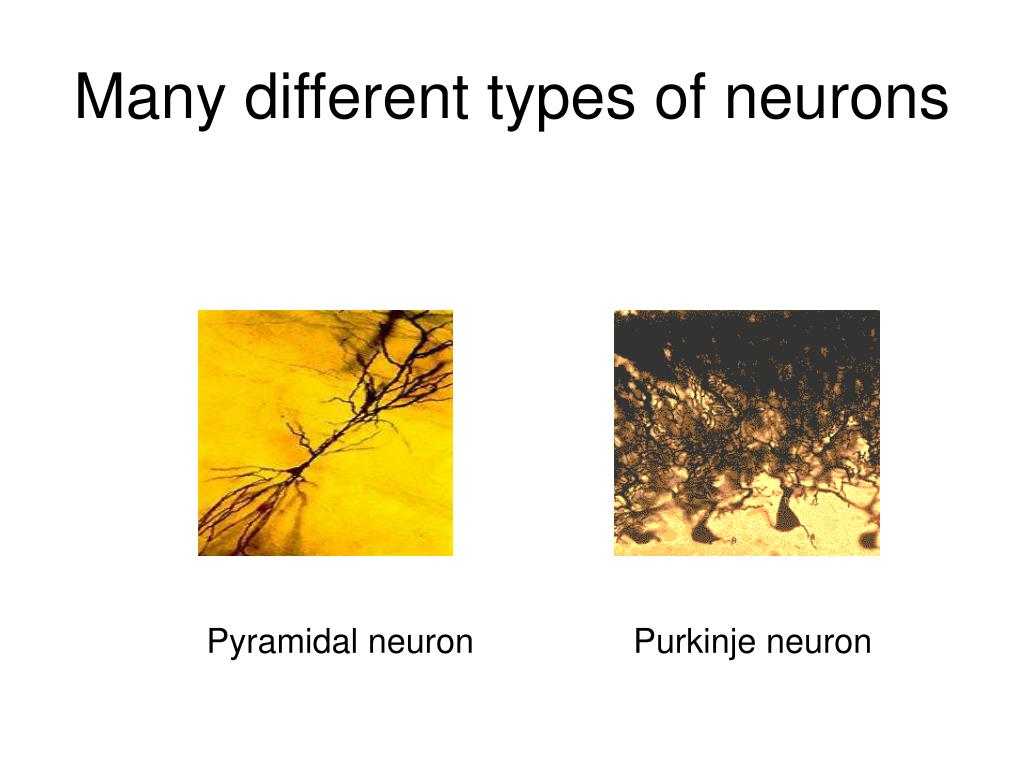 Many different types of neurons