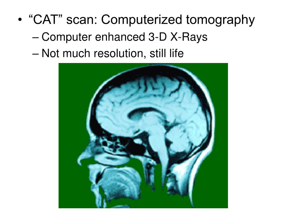 """""""CAT"""" scan: Computerized tomography"""