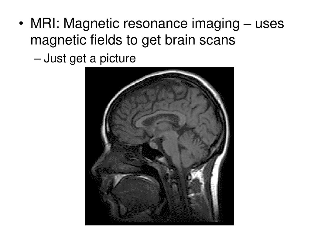 MRI: Magnetic resonance imaging – uses magnetic fields to get brain scans