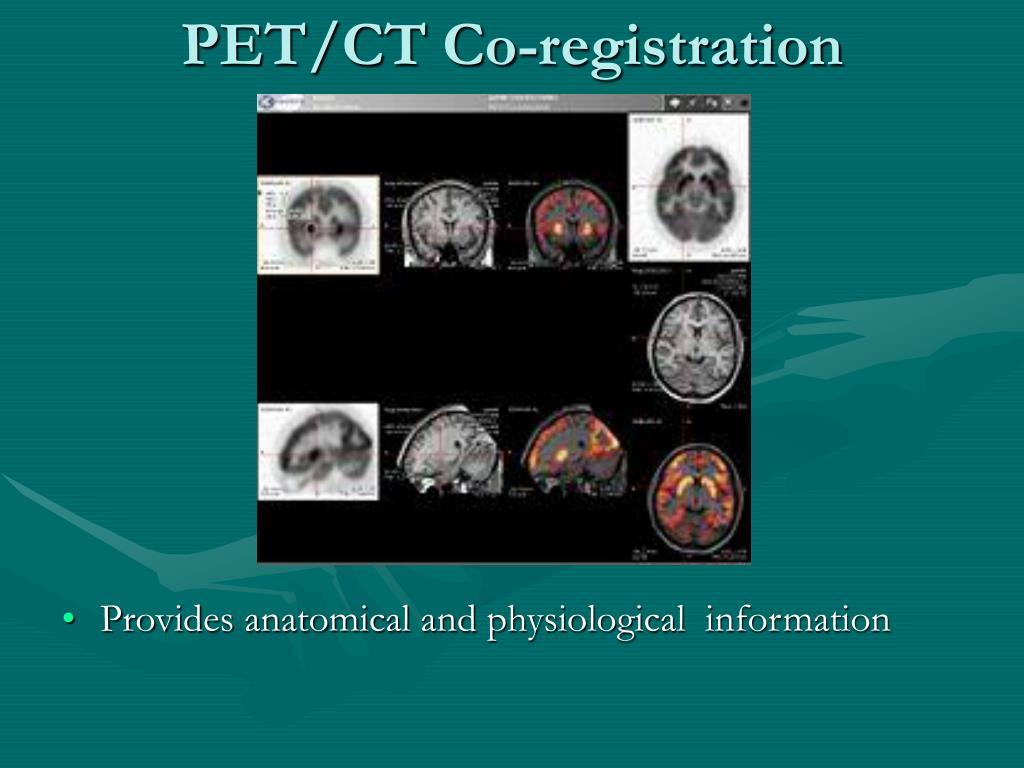 PET/CT Co-registration