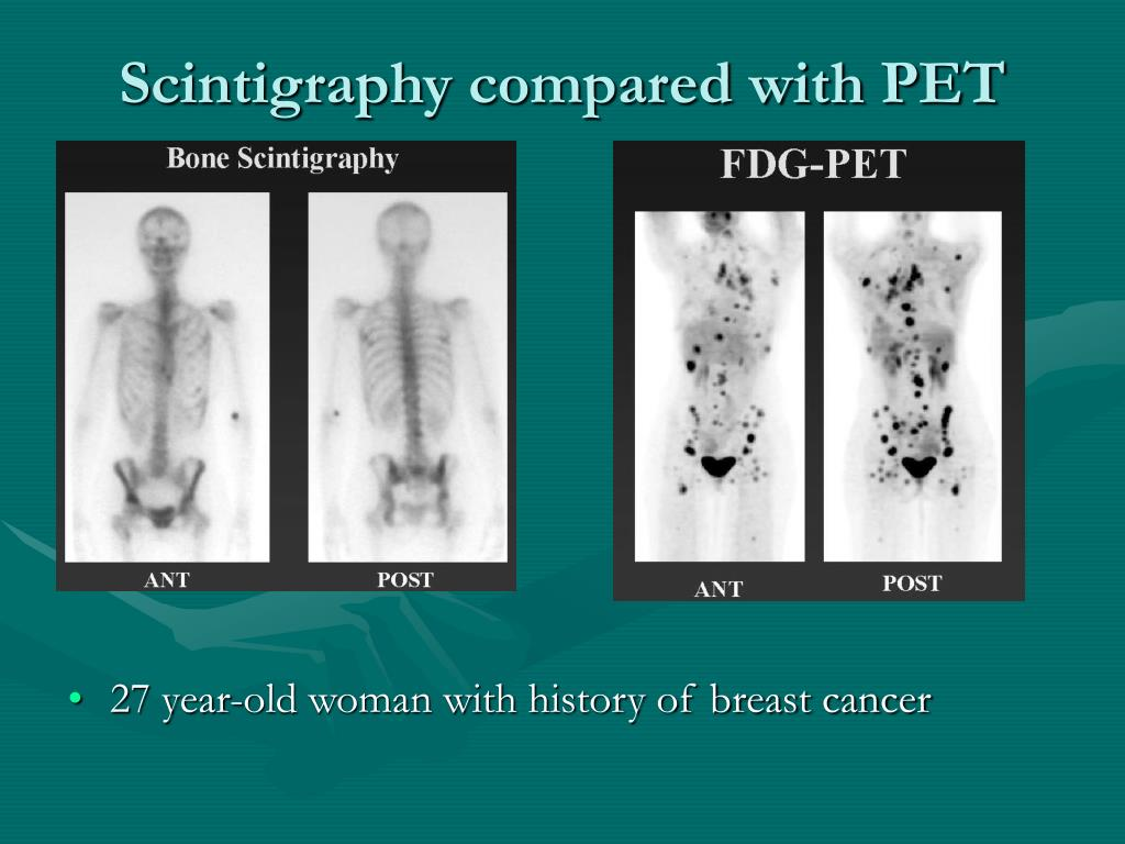 Scintigraphy compared with PET