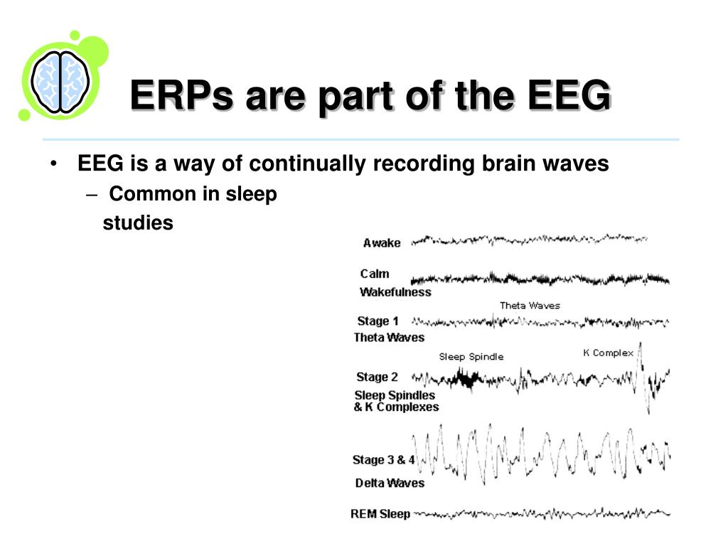 ERPs are part of the EEG