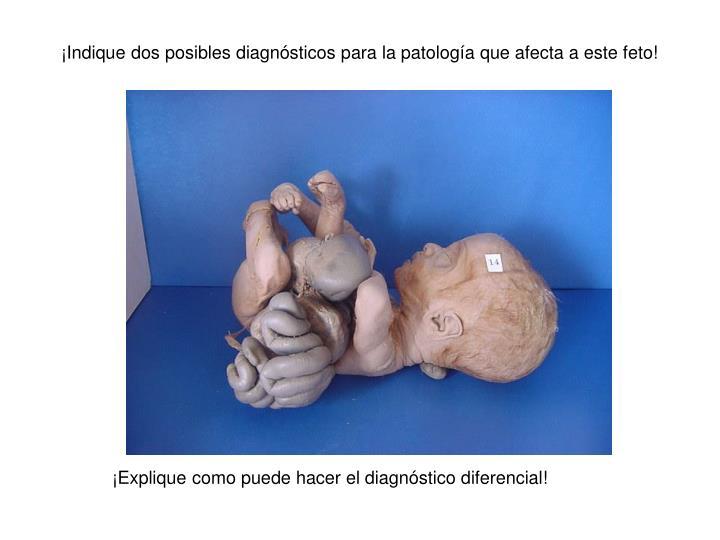 ¡Indique dos posibles diagnósticos para la patología que afecta a este feto!