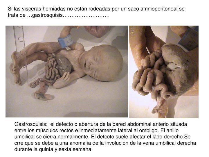 Si las visceras herniadas no están rodeadas por un saco amnioperitoneal se trata de …gastrosquisis………………………
