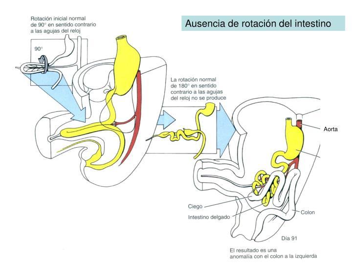 Ausencia de rotación del intestino