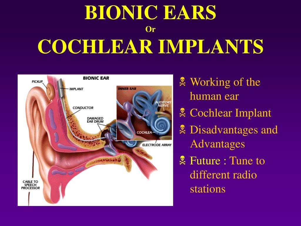 BIONIC EARS