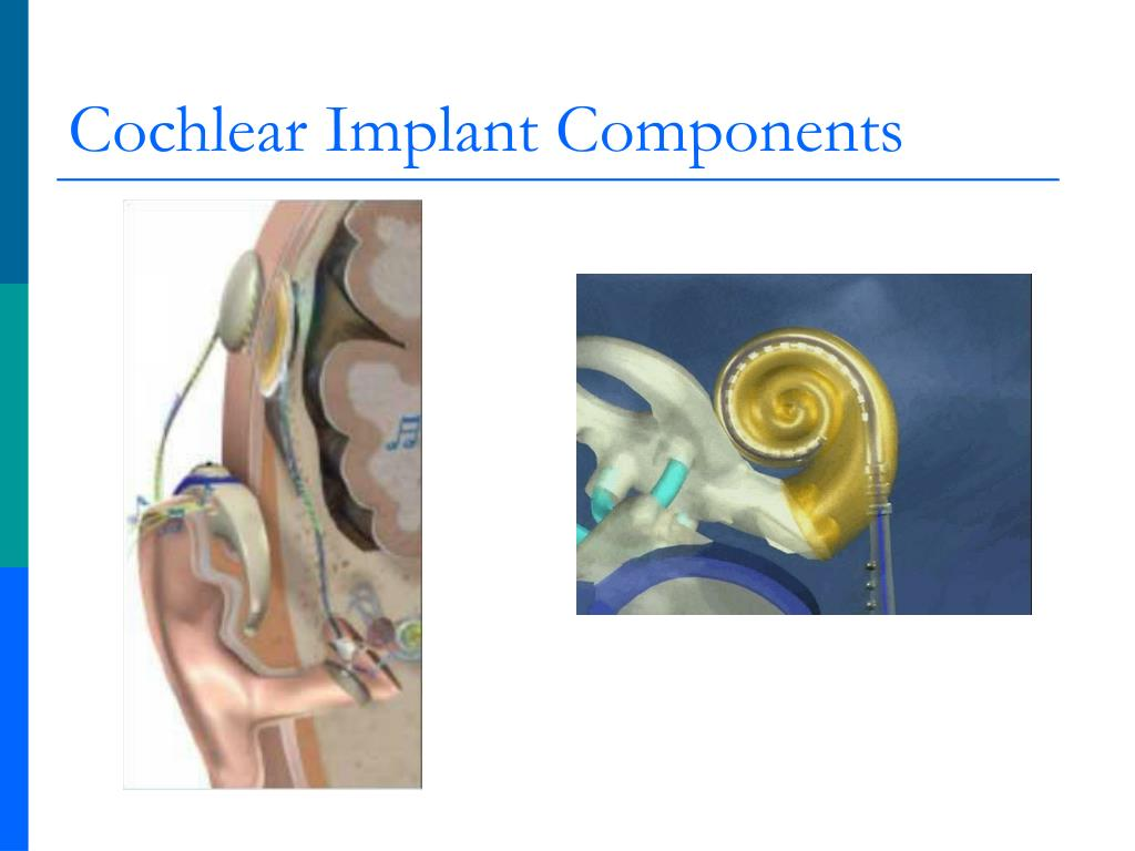 Cochlear Implant Components