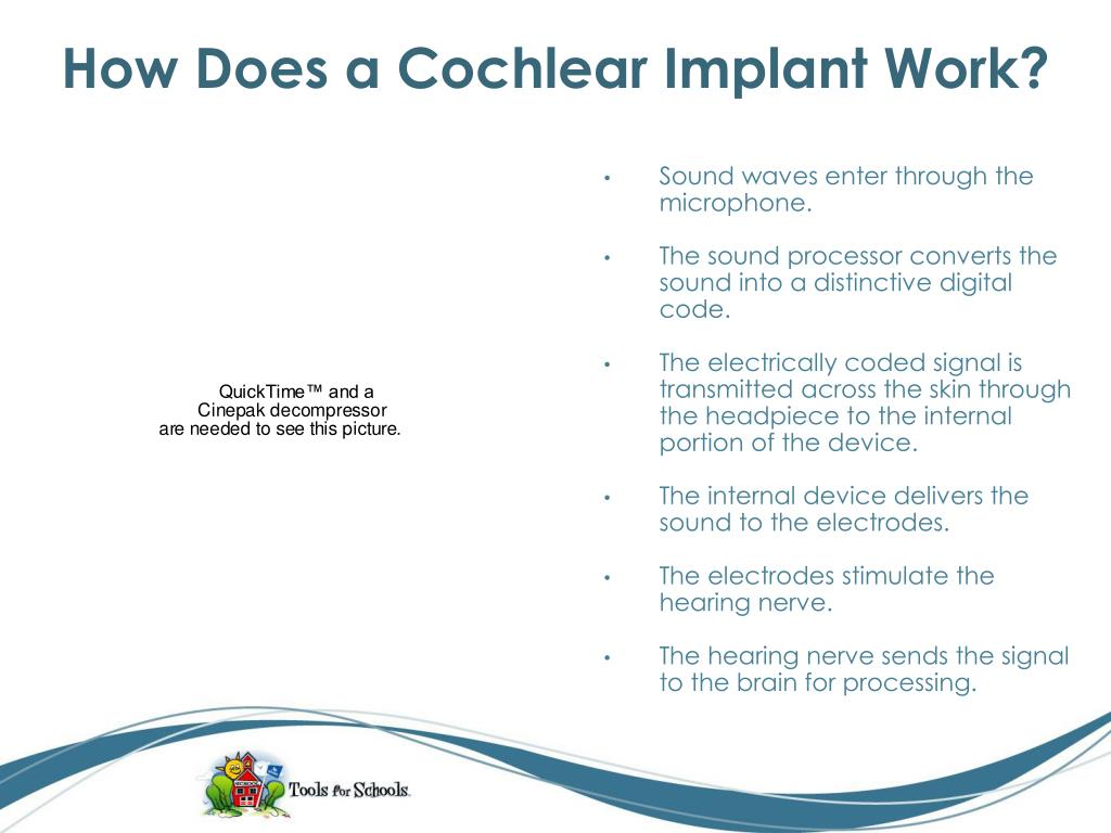 How Does a Cochlear Implant Work?