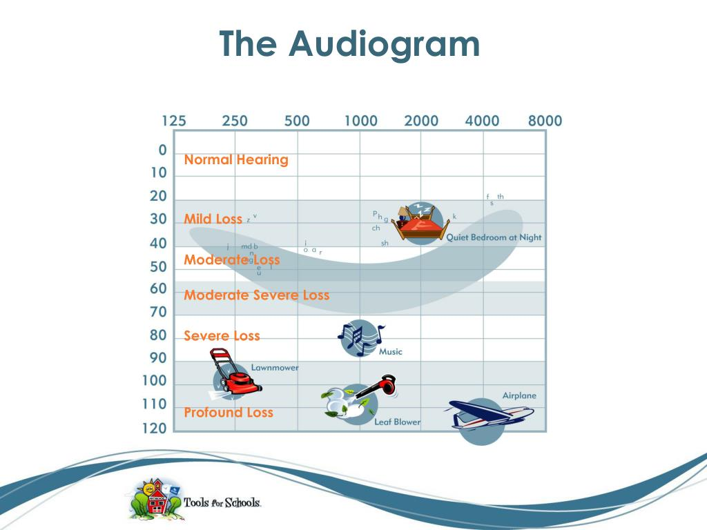 The Audiogram