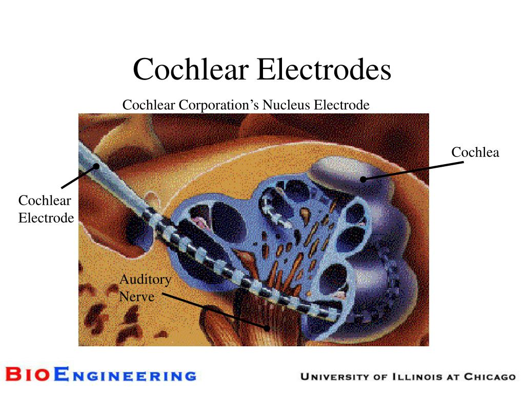 Cochlear Electrodes