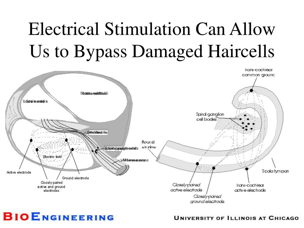 Electrical Stimulation Can Allow Us to Bypass Damaged Haircells