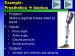 example prosthetics bionics