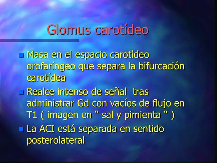 Glomus carotídeo