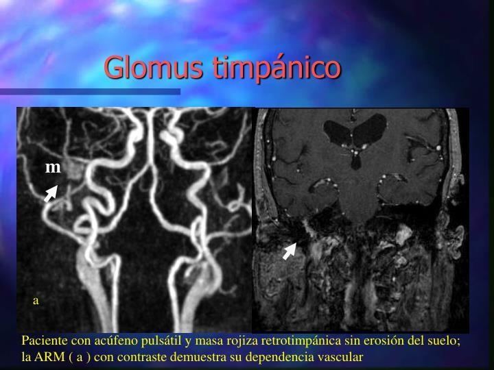 Glomus timpánico