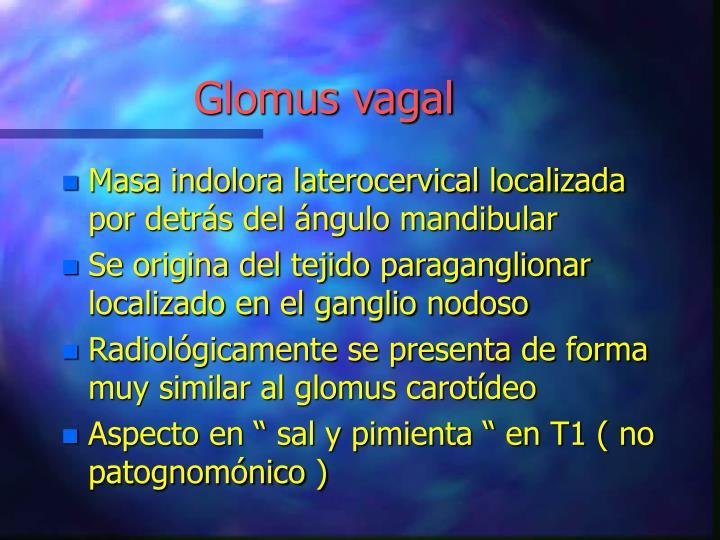 Glomus vagal