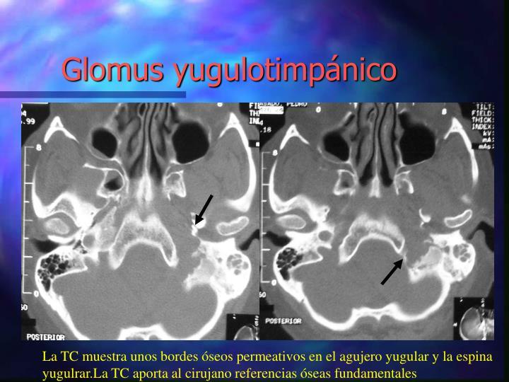 Glomus yugulotimpánico