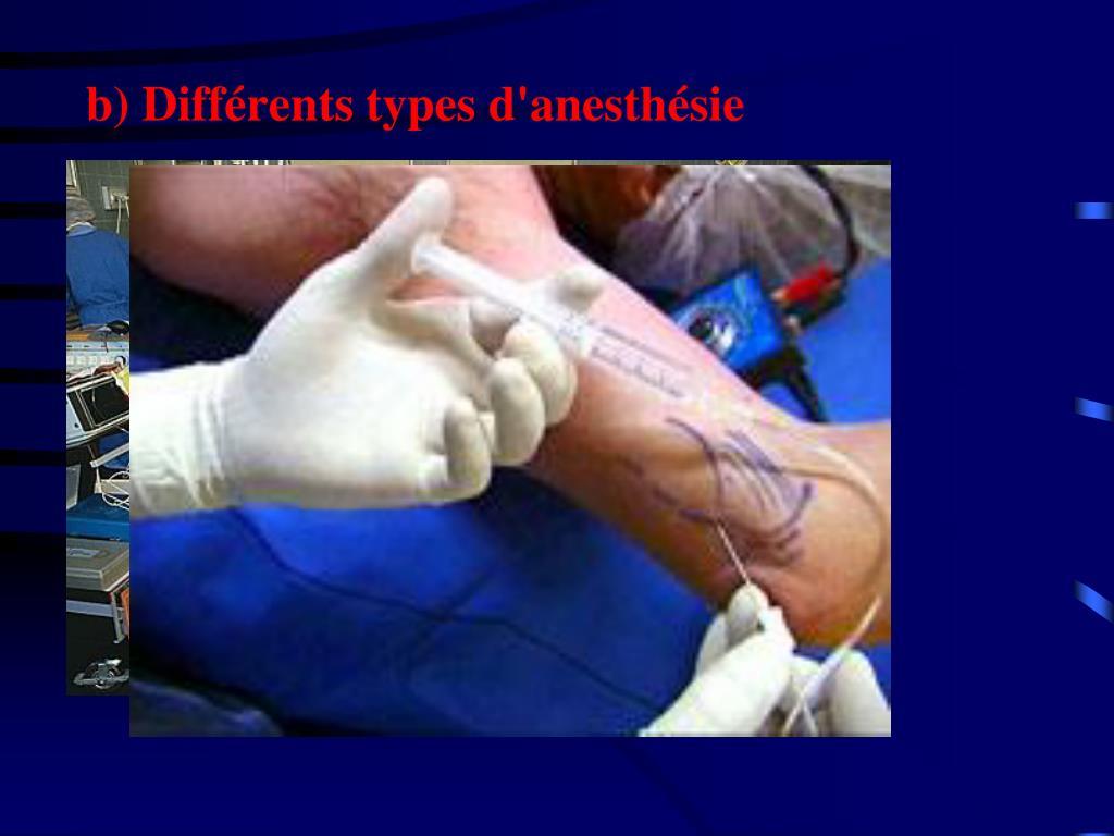 b) Différents types d'anesthésie
