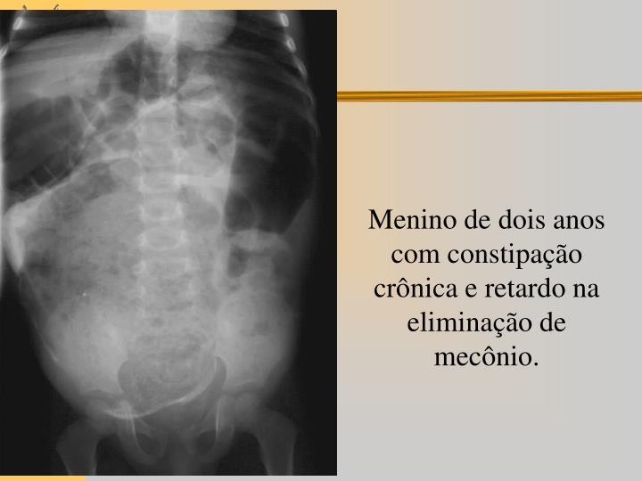 Menino de dois anos com constipação crônica e retardo na eliminação de mecônio.
